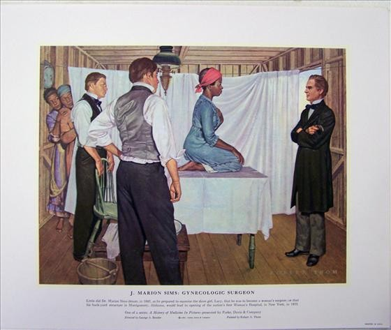 J Marion Sims - Gynecologic Surgeon