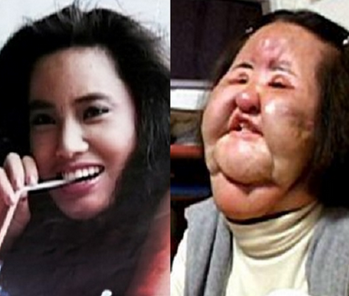 Hang Mioku Korean-born model put cooking oil in her face. www.naturallymoi.com